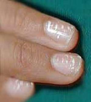 Найдены причины полосок на ногтях