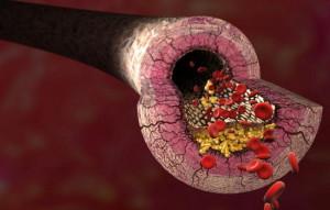 Лечение атеросклероза народными средствами - эффективные методы