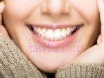 Скайсы на зубы