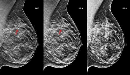 Как выглядит грудь на маммографии